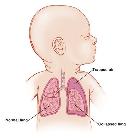 赤ちゃんの肺の解剖図|不妊治療HP