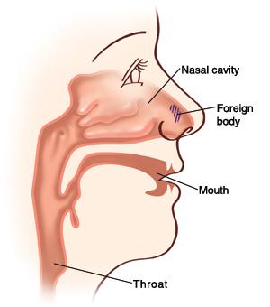 子供の鼻の構造 不妊治療HP
