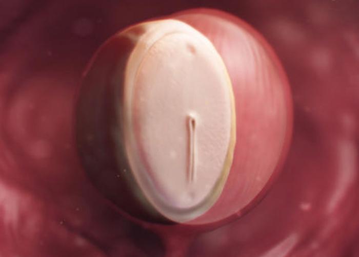 胚のリアルな絵|不妊治療HP
